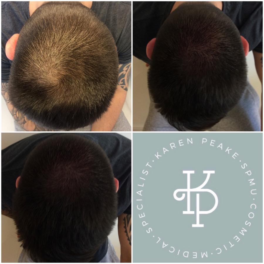 Thinning scalp